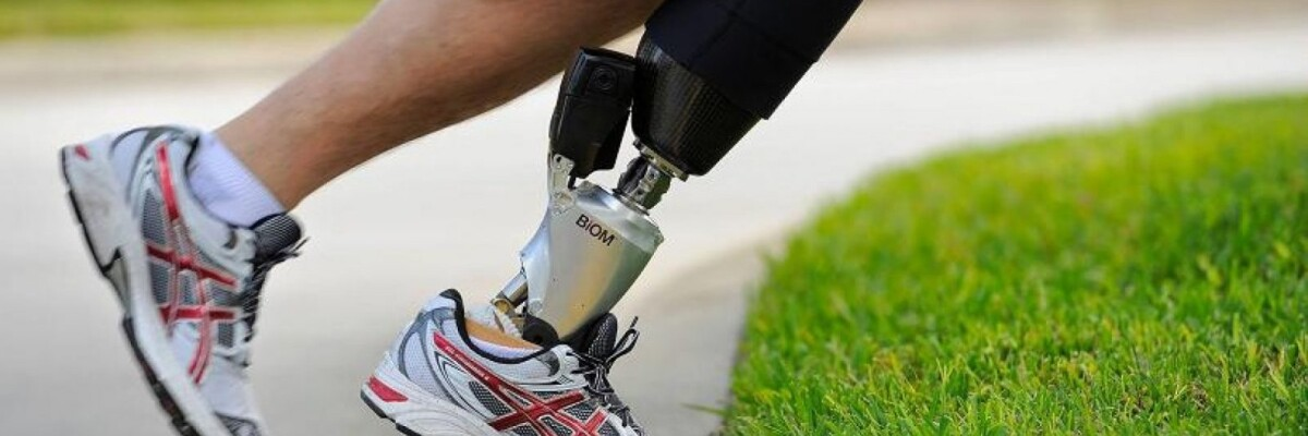 Smart prostheses are around the corner