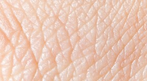 Complete skin regeneration with transgenic stem cells