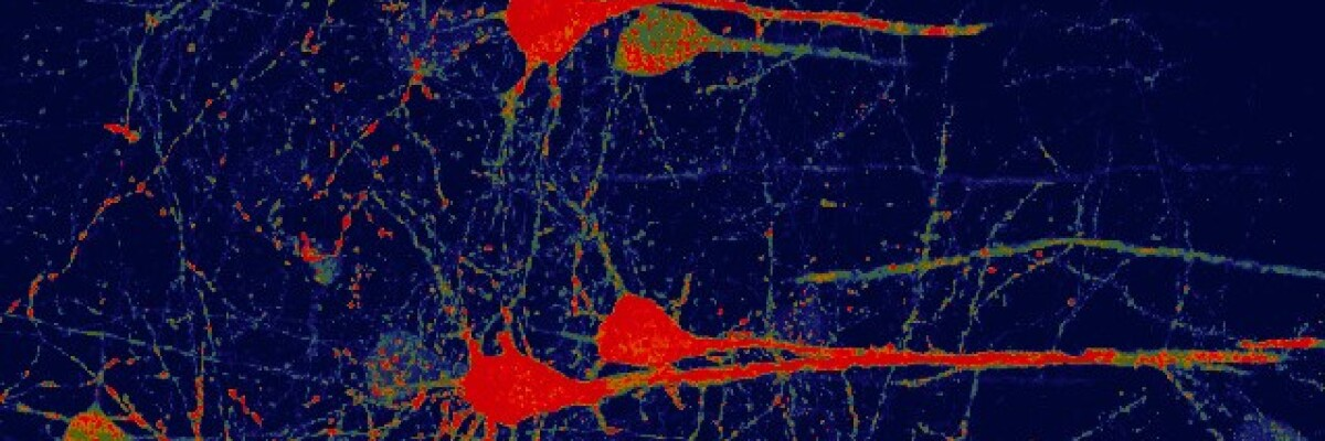Gene therapy transforms glial cells into functioning neurons