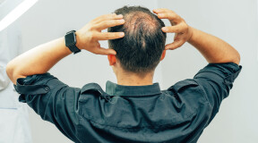 Scientists Create a Compact Device to Stimulate Hair Growth
