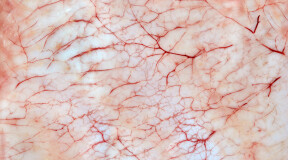 Scientists 3D Print Living Skin Complete with Blood Vessels