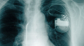 A new pacemaker equipped with artificial intelligence will combat cardiac insufficiency